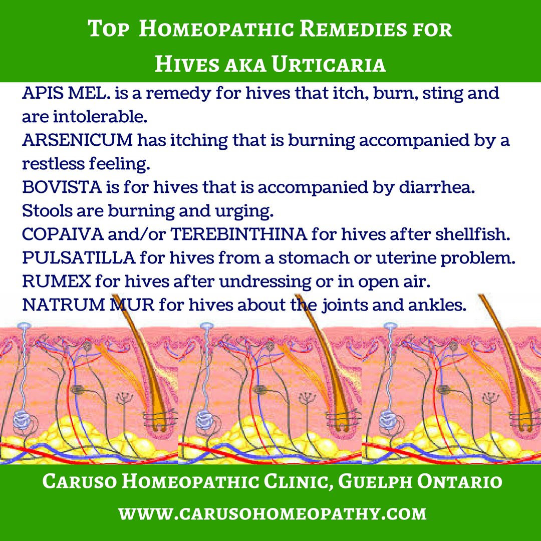 Homeopathy is great for the symptoms of hives or urticaria