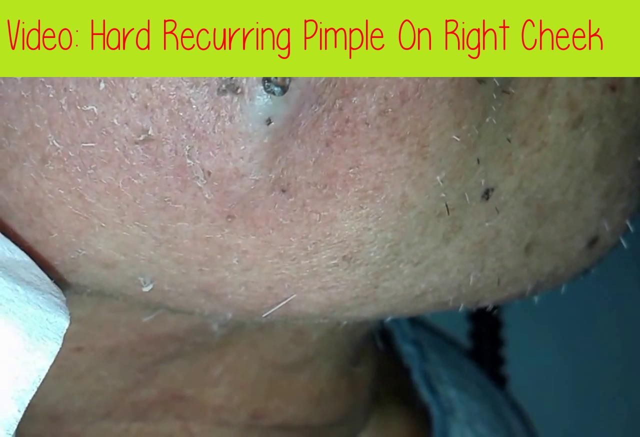 Hard Pimple