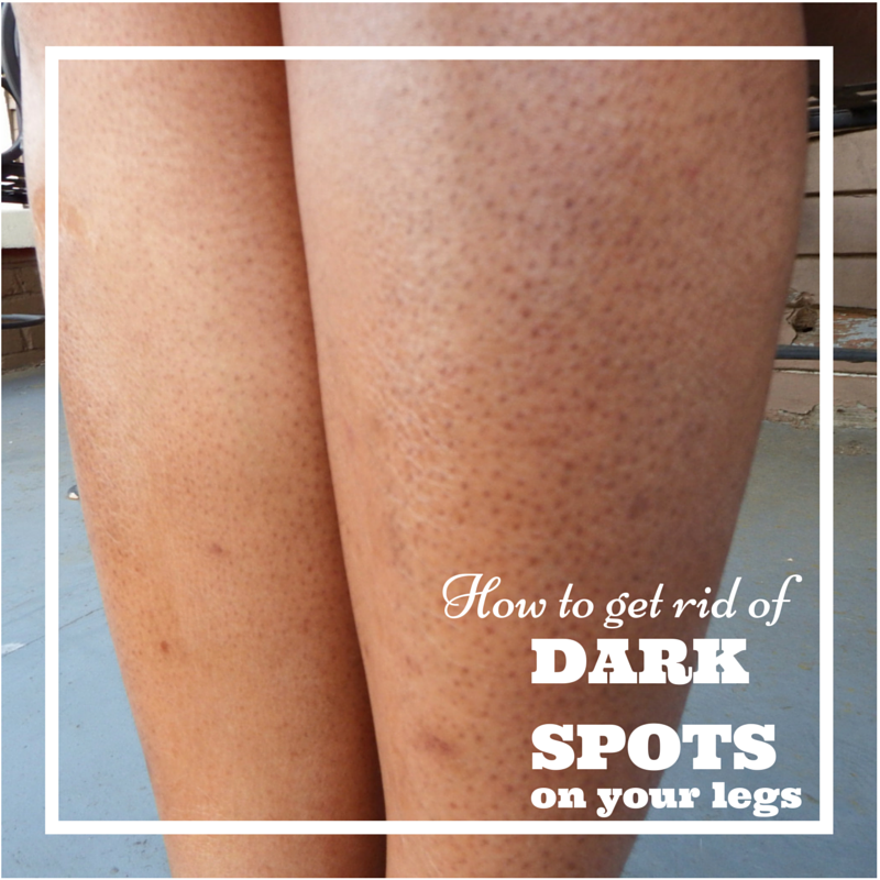 How To Get Rid Of Dark Spots On Your Legs A K A