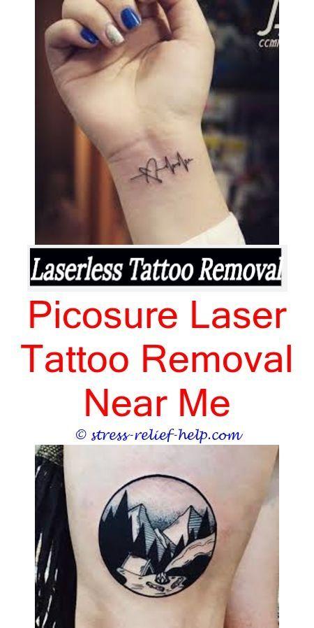 Tattoo Removal Clinic Did Gucci Mane Remove His Ice Cream Tattoo