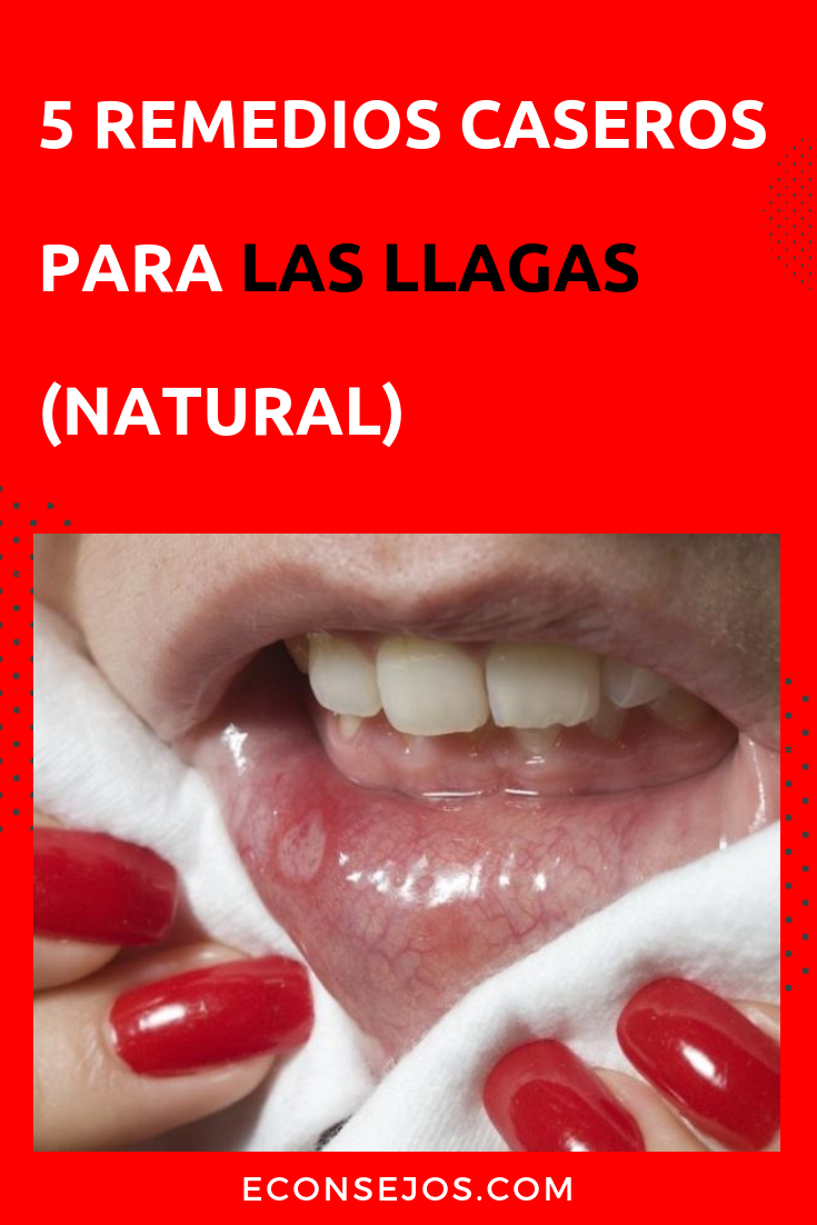 remedios caseros llagas labios