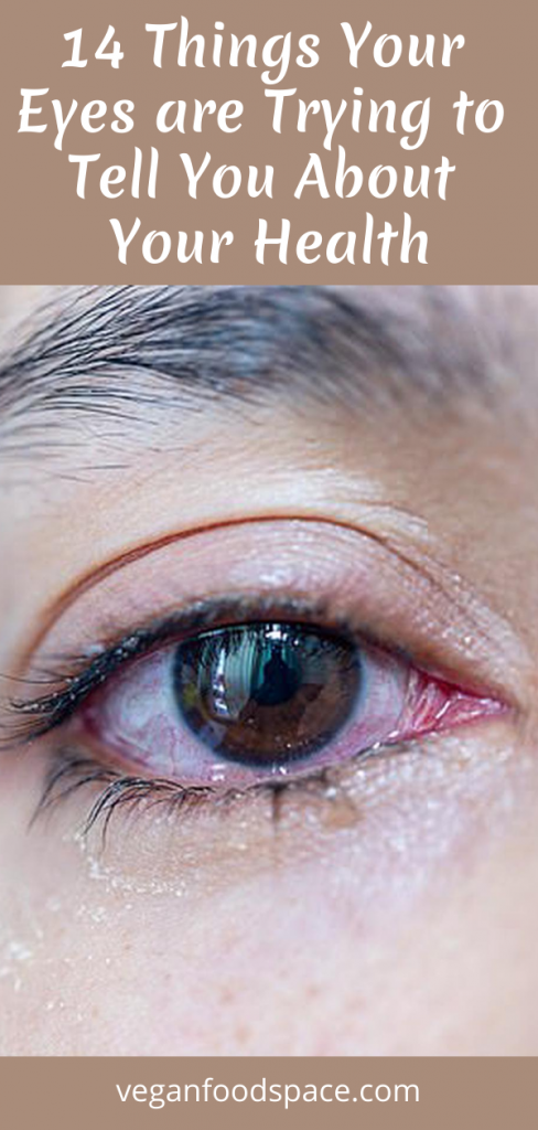 14 Things Your Eyes are Trying to Tell You About Your Health - Vegan…