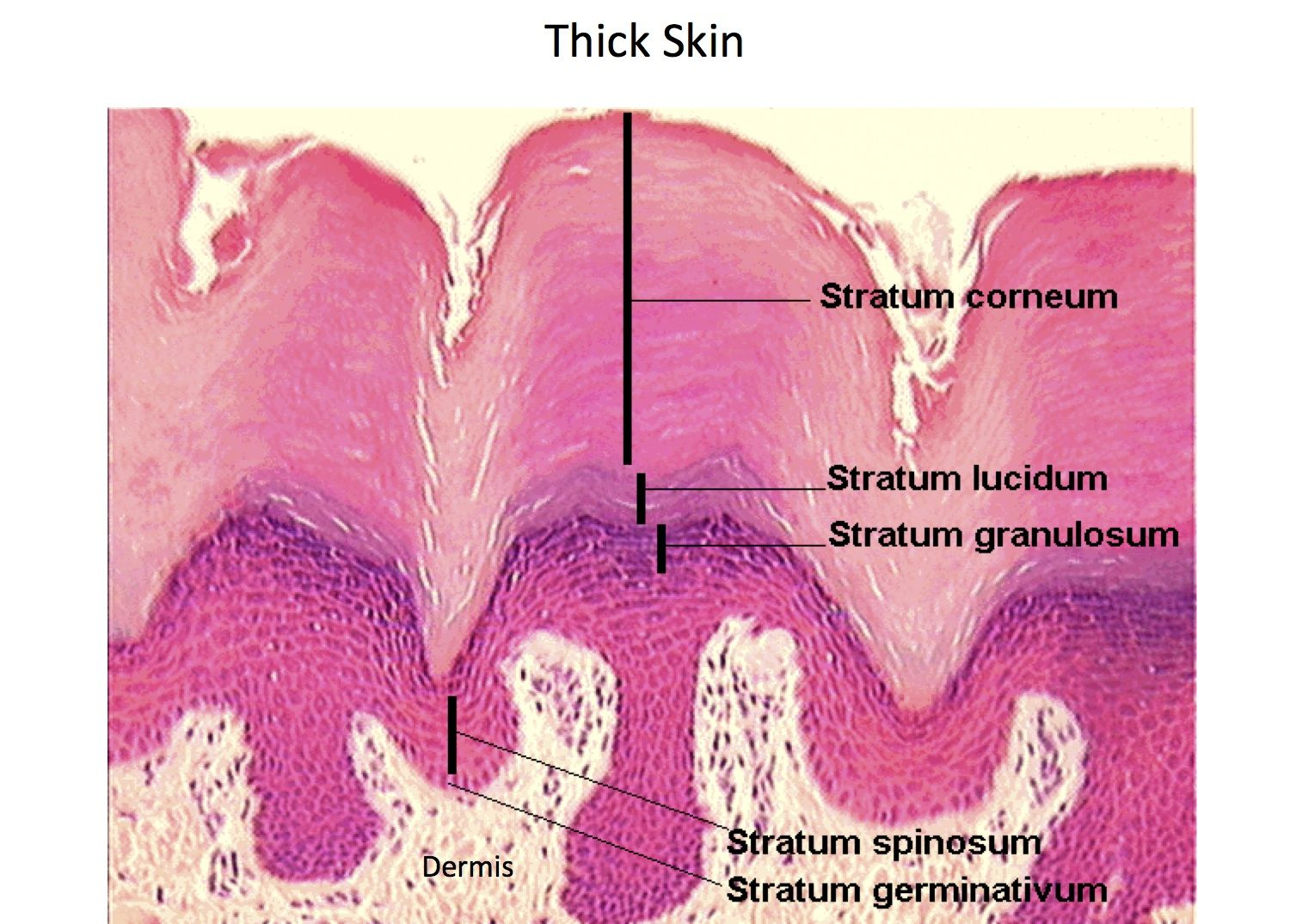 Thick Skin - Epidermal Layers - Histology | Histology - Skin ...