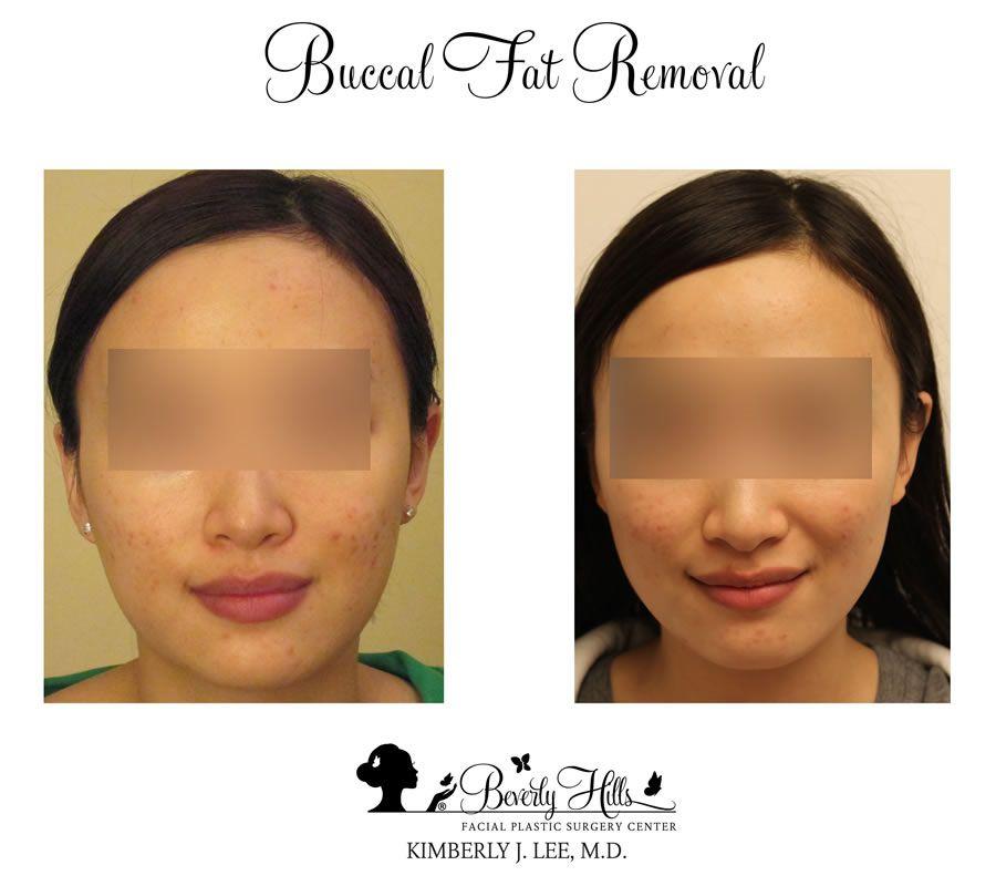 Beverly hills facial reconstructive surgery