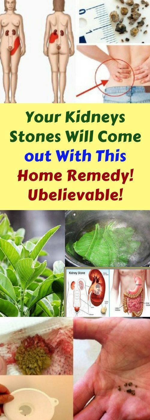 Your Kidneys Stones Will Come Out & This… Home Remedy Unbelievable!!!  #beautytips  #fitness