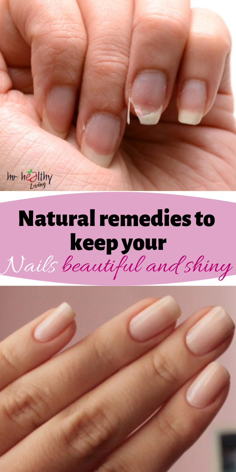 Natural Remedies To Keep Your Nails Beautiful And Shiny Grow Nails Faster Healthy Nails Natural You Nailed It