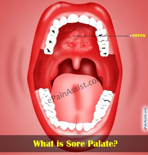Sore Palate or Sores on Roof of Mouth | Health!!!! | Roof of