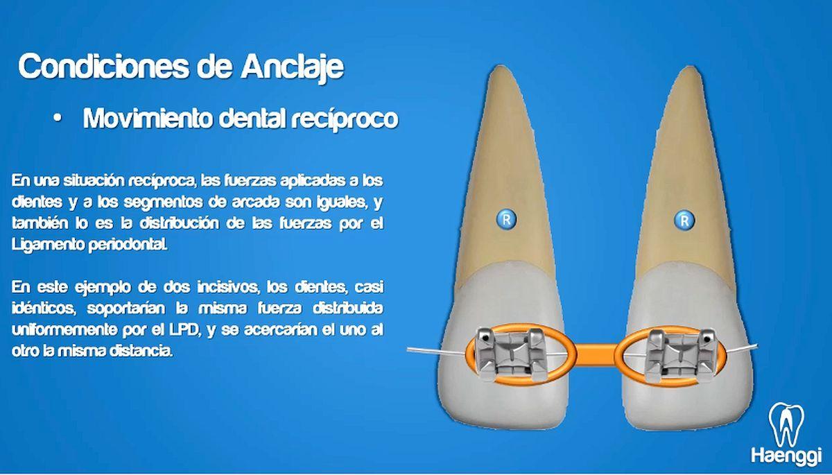 anclaje-ortodoncia