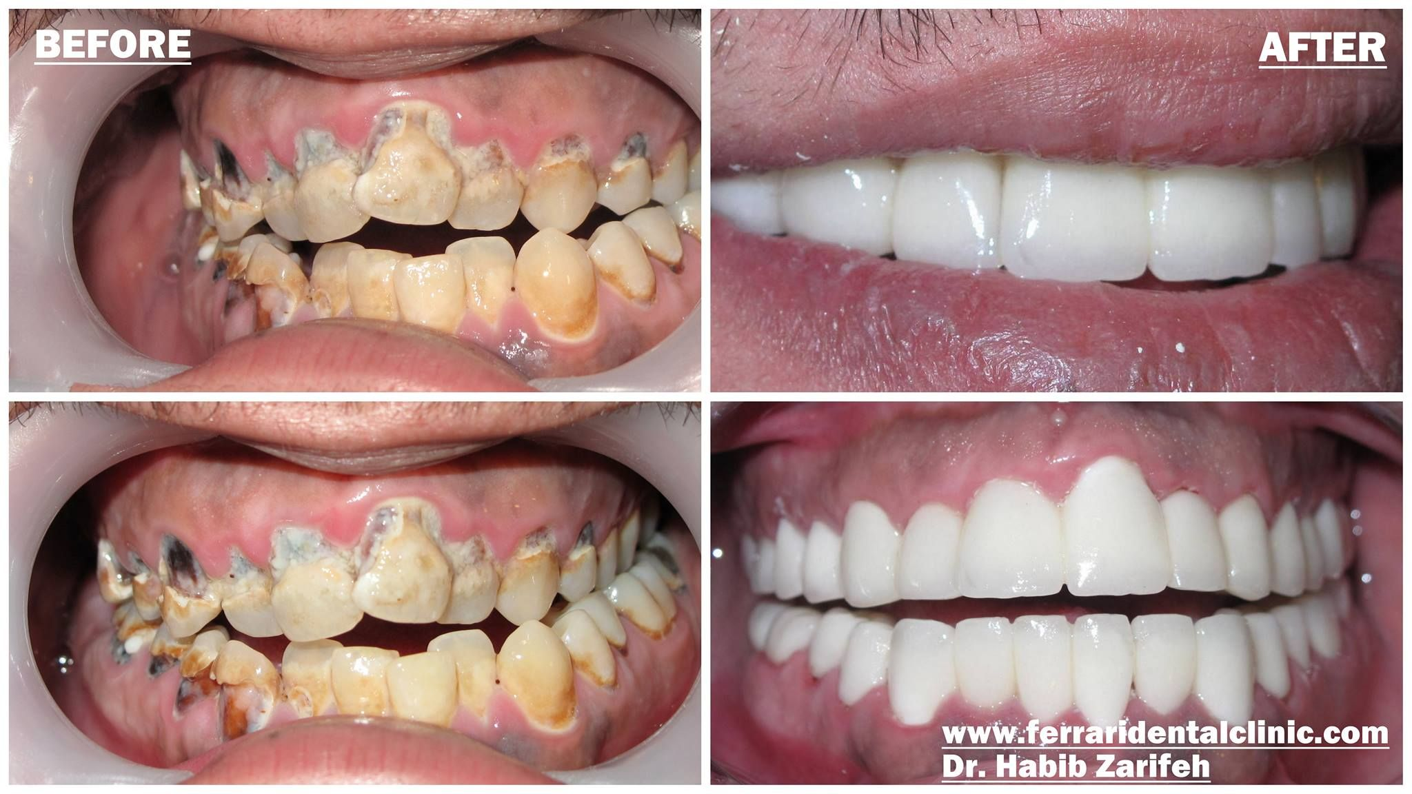 Things you should know before invisalign and veneers my teeth things you should know before invisalign and veneers my teeth transformation httpyoutubewatchvafwi70 ofos good to know solutioingenieria Gallery