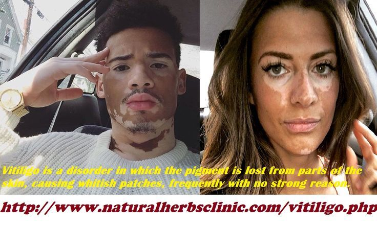 The most noticeable Vitiligo symptoms are loss of pigment on the smooth skin su