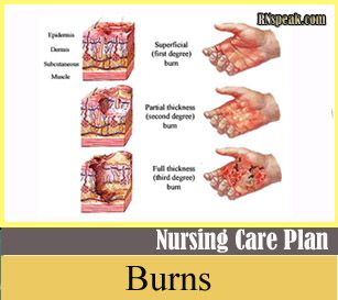 Burns Nursing Care Plan Risk For Fluid Volume Deficit Burns
