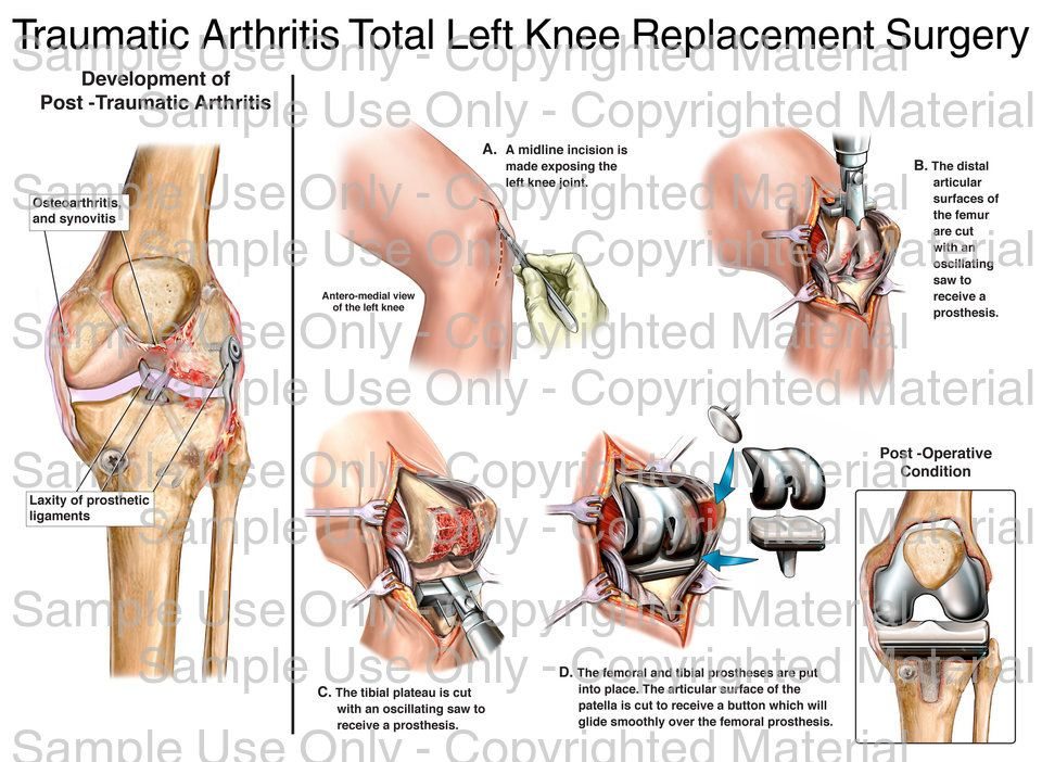 Loading: \'Traumatic Arthritis Total Left Knee Replacement Surgery ...