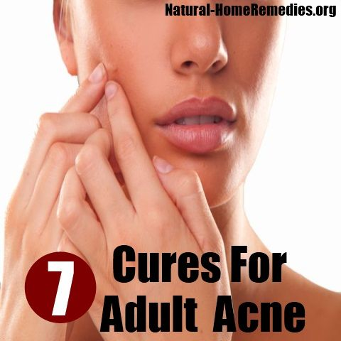 Adult Acne Natural Cure The Best Acne Treatment Theacnecode Com