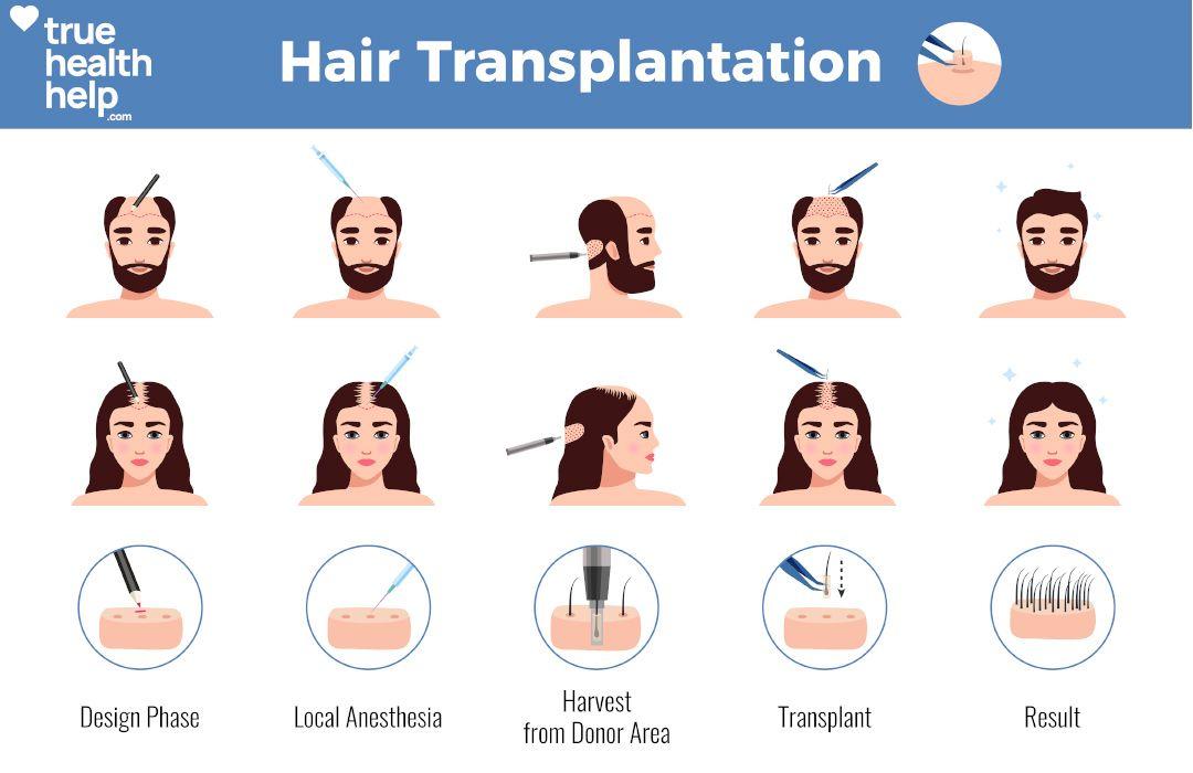 Park Art My WordPress Blog_Stem Cell Hair Transplant Japan