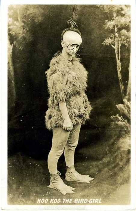 Koo Koo The Bird Girl c.1930, - Minnie Woolsey born with Virchow Seckel syndrome.  Minnie starred in Freaks and toured in circus freak shows