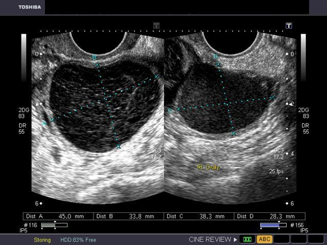 the cyst on the left half of the ultrasound image is a hemorrhagic rh pinterest com