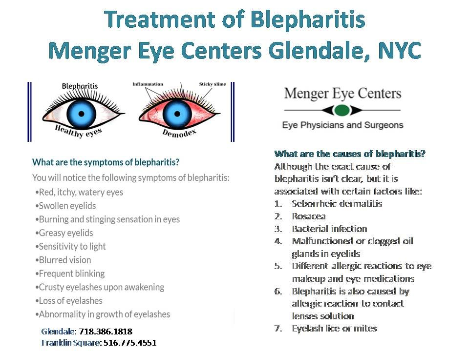 Blepharitis is the eye condition in which the eyelids become inflamed and involves that part of the eyelids where the eyelashes grow.