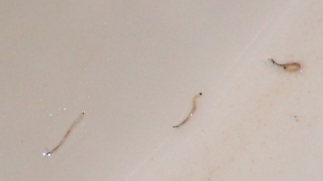 What do pinworms look like in the toilet