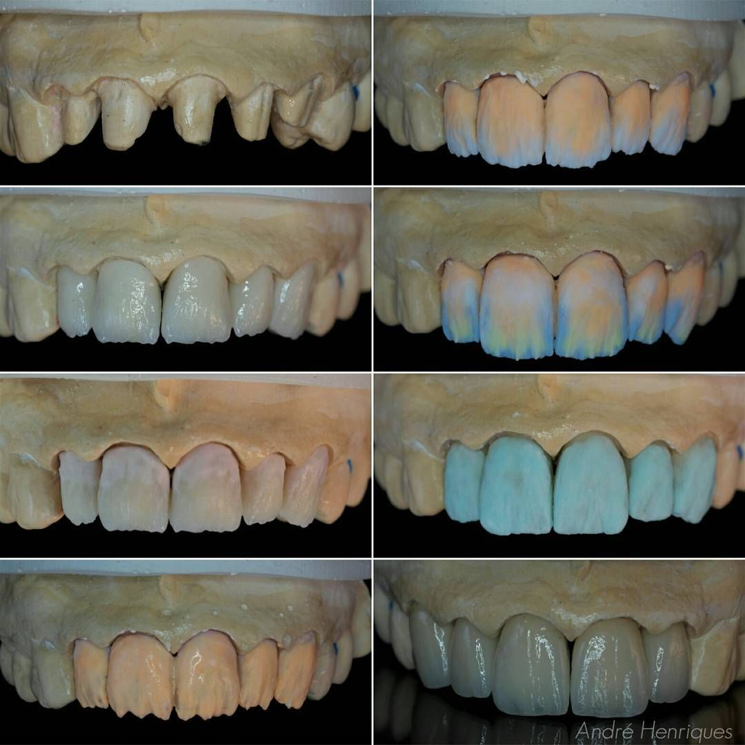The Build Up 5 Zirconia Crowns Layered In Ceramic I Had Extremely Limited Space To Layer My Ceramic On The 11 1mm Inclu Anatomia Dental Dental Odontologia