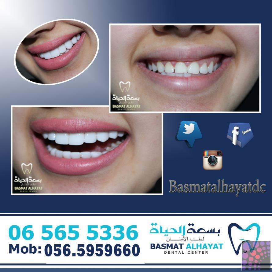 تبييض الاسنان بالليزر 499 درهم بالشارقة Dental Health Beauty Health