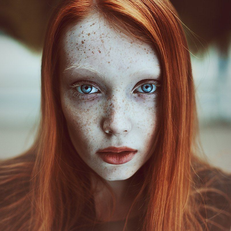 Pale Redhead Freckles 82