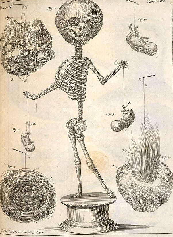 Morbid Anatomy: Announcing a New Virtual Museum Dedicated to ...