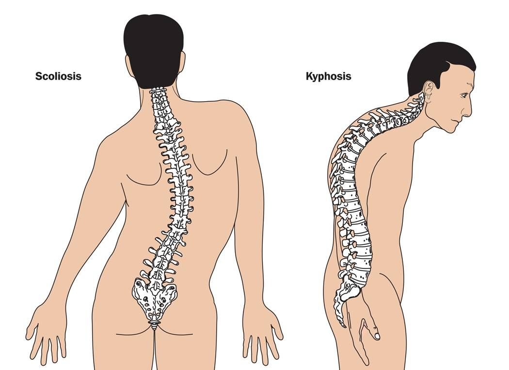 Die neuromuskuläre Skoliose – Behandlung der muskulär bedingten ...