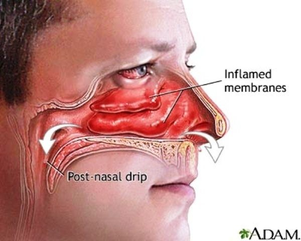 91a19e34d0badefc375d4ac9ffa75999 - How To Get Rid Of Tooth Pain From Sinus Pressure