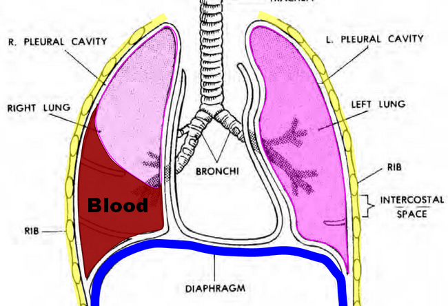 Hemothorax is a type of pleural effusion in which blood accumulates ...