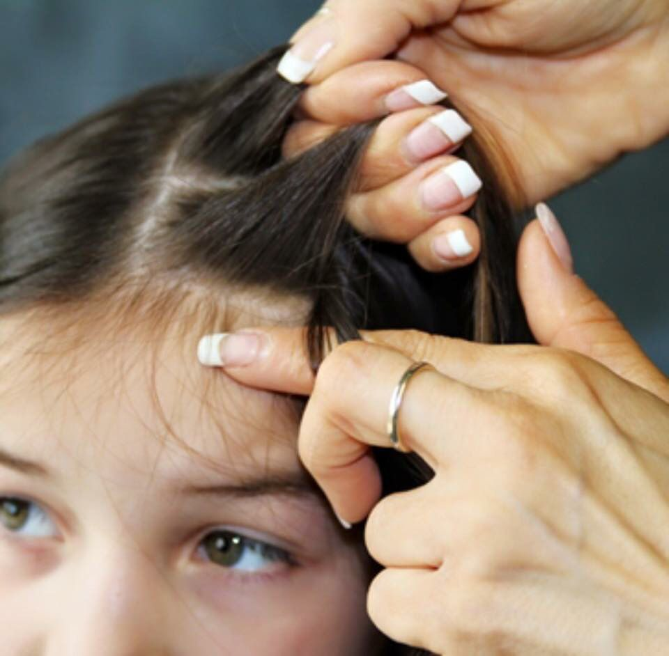 Signs and symptoms of head lice include: Itchy scalp, scratching