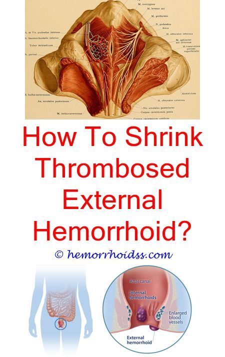 What does hemorrhoids mean-2849