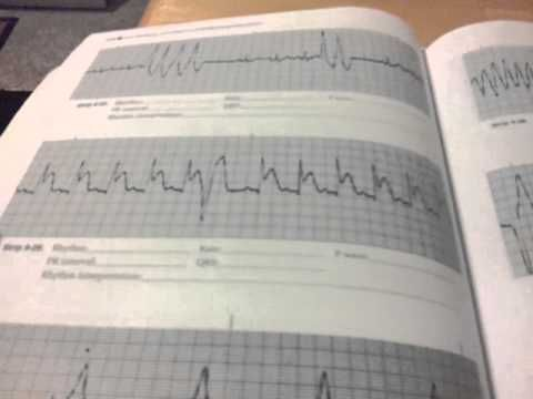 How I Learned And Earned My Ecg Ekg Certification And Telemetry Monitor Technician Youtube