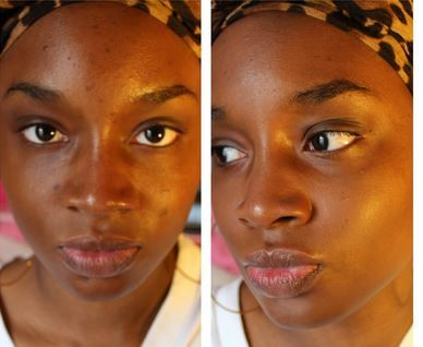 How to remove pimple black marks fast