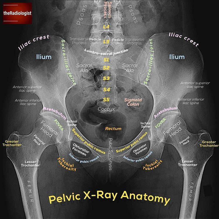 Want to learn a system for reviewing a pelvic X-ray?