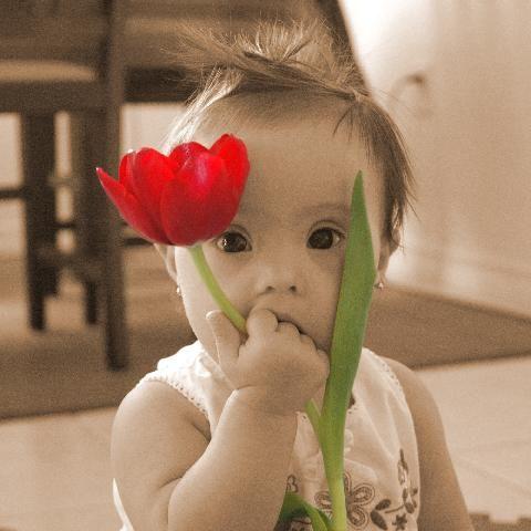 Foto de bebé con síndrome de Down