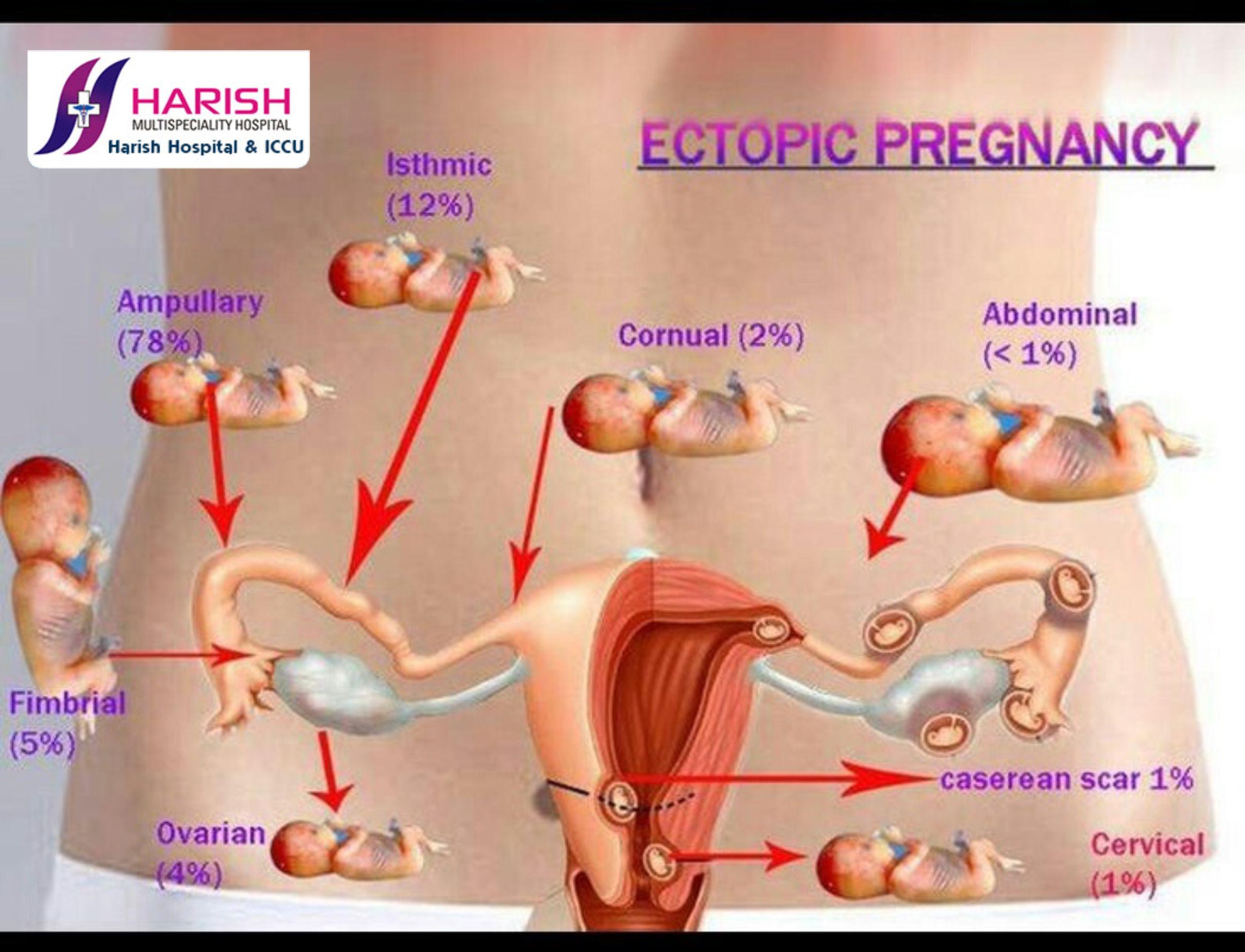 Pin by harish hospital nerul on Ectopic pregnancy | Pinterest ...