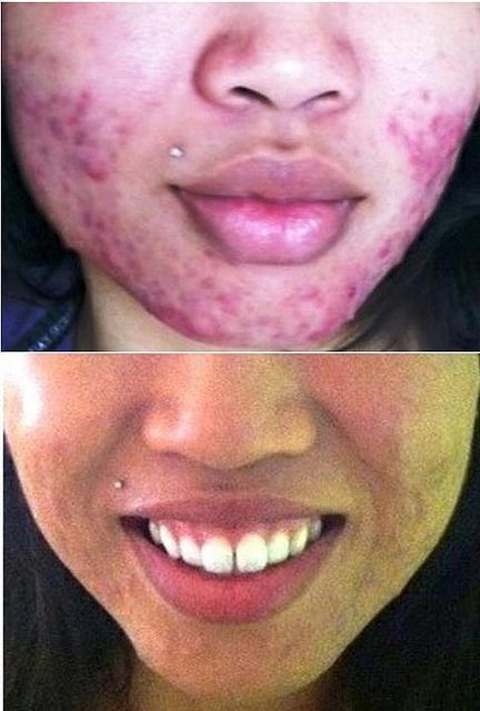 Wow!  Look at these amazing results from using NeriumAD, an accidental discovery by Nerium Biotech.  Four pumps of NeriumAD on a clean face at night and that's it.  How easy can it be?  What have you've got to lose but your wrinkles, fine lines, uneven skin texture, hyperpigmentation, etc.?  Visit my website for more info - www.camarilloman.theneriumlook.com.