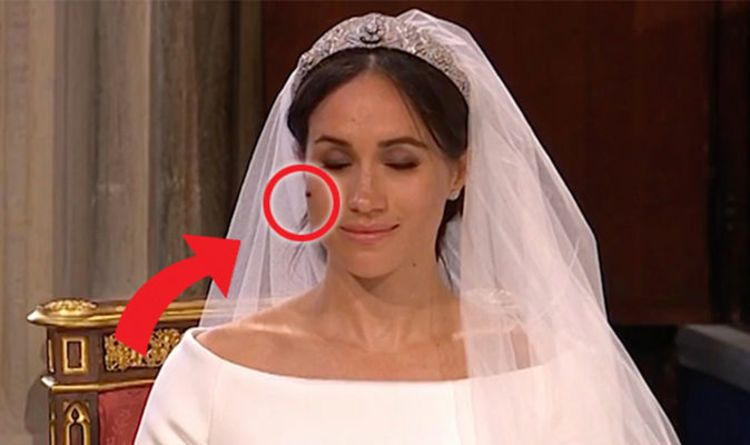 meghan markle fly on face prince harry wedding celebrities black beauties meghan markle fly on face prince