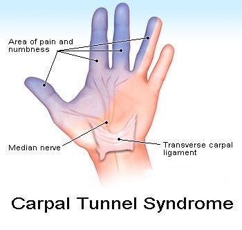 Causes of thumb numbness