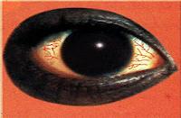 مرض الرمد بعض الأمراض التي تصيب الإنسان الموسوعة المدرسية Celestial Bodies Body Saturn