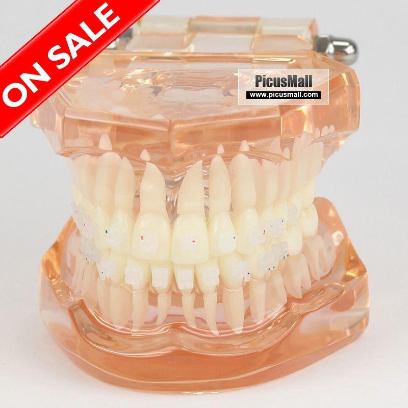 Orthodontics Model For Demonstration With Ceramic Bracket Zyr 3002 Baistra Orthodontics Series Picusmall Orthodontics Desserts Cake