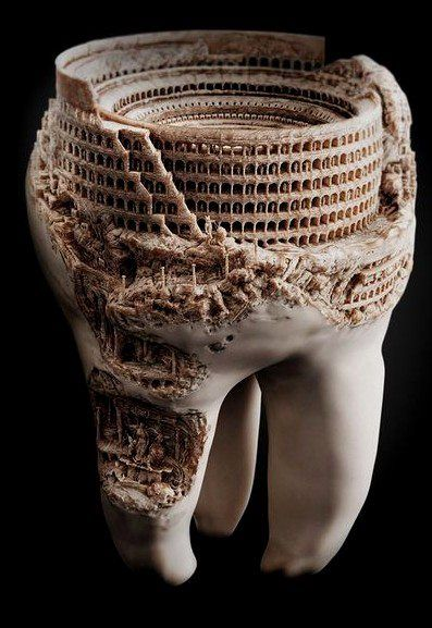 That is some amazingly detailed rot in this tooth......