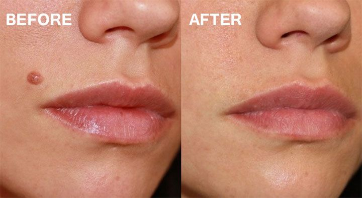 Home Remedies Moles On Face Laser Mole Removal Mole Removal