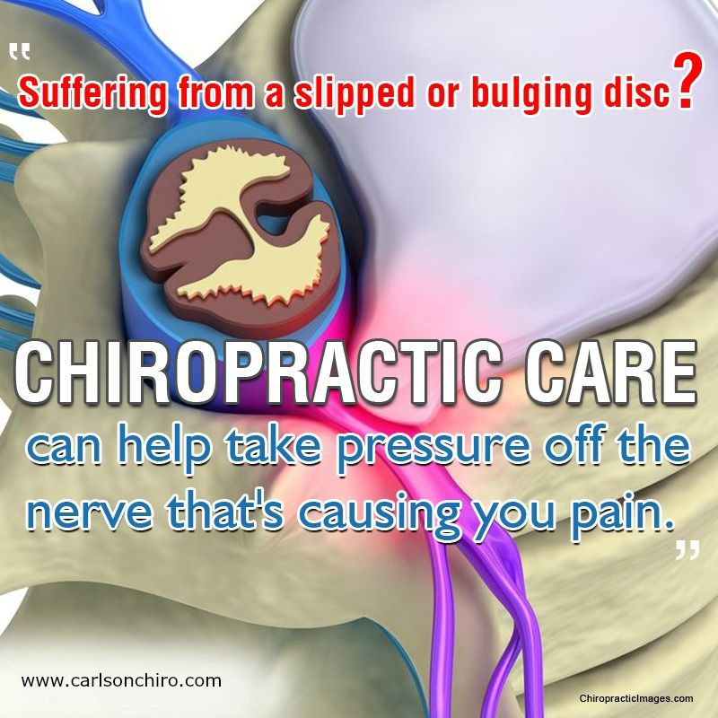 Suffering from a slipped or bulging Disc? Carlson