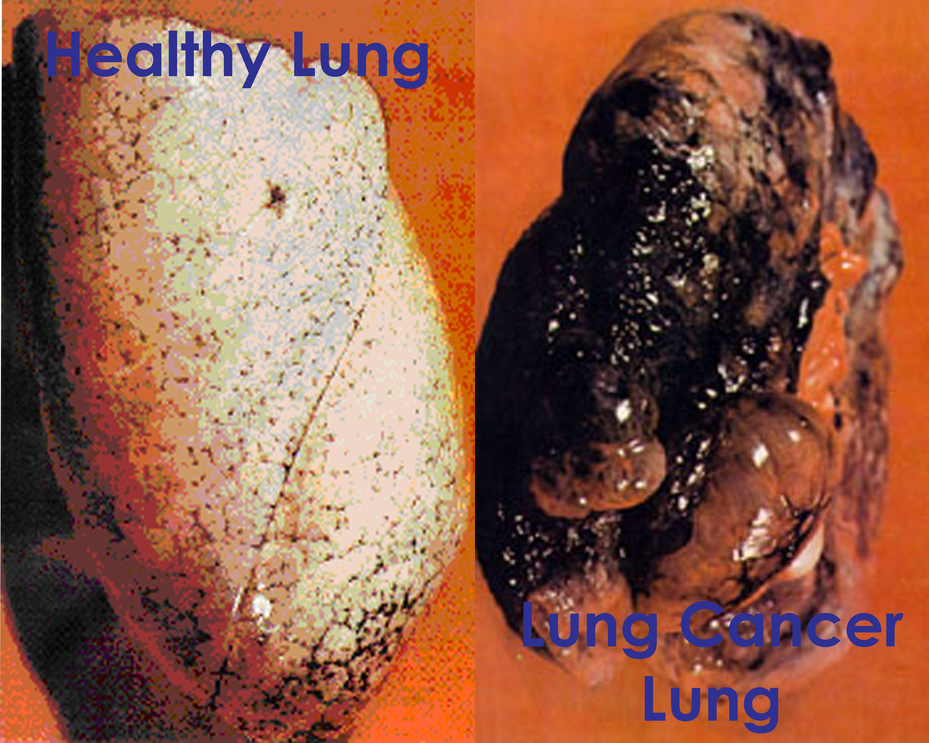 healthy lungs vs cancer lungs projects to try pinterest cancer