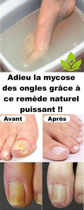 epaississement ongle pied