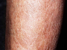 causes of very dry skin
