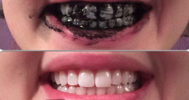 blanchir ses dents charbon végétal