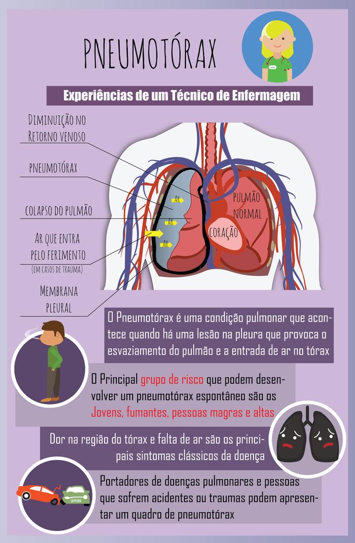Pneumotórax | Pinterest | Medicina, Fisioterapia y Biología