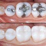 How To Treat Tooth Decay Intelligent Dental Dental Fillings Dental Crowns Dental